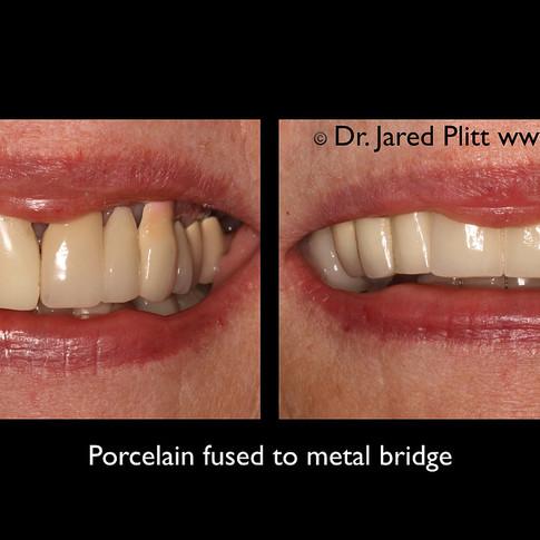 Porcelain Fused to Metal Bridge: Miami Beach Cosmetic Dentist Jared Plitt