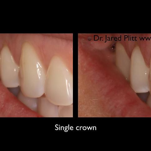 Single Crown: Miami Beach Cosmetic Dentist Jared Plitt