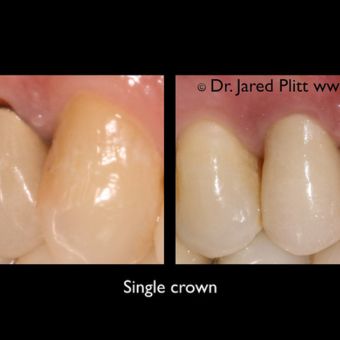 Single Crown: Miami Beach Cosmestic Dentist Jared Plitt