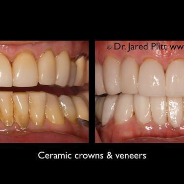 Ceramic Crowns and Veneers: Miami Beach Cosmetic Dentist Jared Plitt