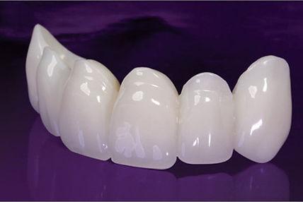 Temporary Restorations, Temporary Restorations Florida, Temporary Restorations South Florida, Dental Lab, Dental Lab Florida, Dental Lab South Florida, Best Dental Labs, Best Dental Labs Florida, Best Dental Labs South Florida, Dental Ceramics, Dental Ceramics Florida, Dental Ceramics South Florida, Dental Laboratory, Dental Laboratory Florida, Dental Laboratory South Florida, Cosmetic Dental Lab, Cosmetic Dental Lab Florida, Cosmetic Dental Lab South Florida, Cosmetic Dental Laboratory, Cosmetic Dental Laboratory Florida, Cosmetic Dental Laboratory South Florida