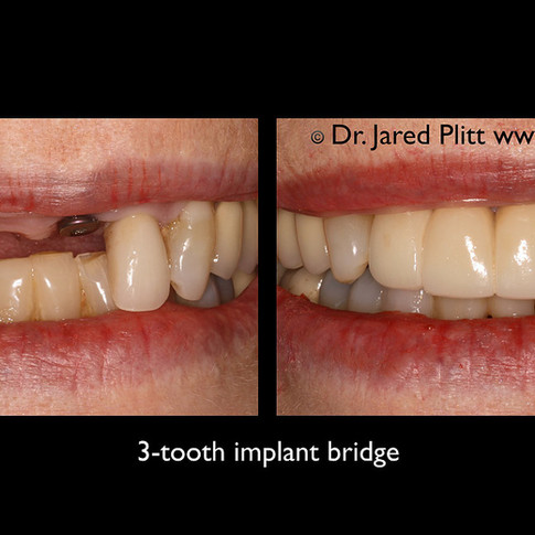 3-Tooth Implant Bridge: Miami Beach Cosmetic Dentist Jared Plitt