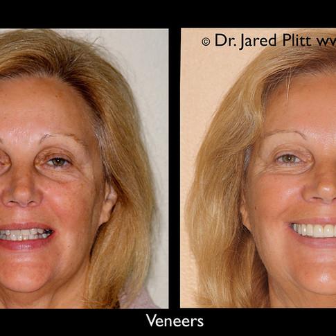 Veneers: Miami Beach Cosmetic Dentist Jared Plitt