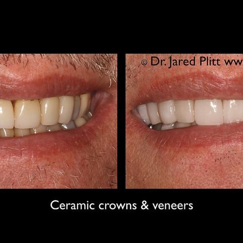 Ceramic Crowns and Veneers: Miami Beach Cosmetic Dentist Jared Plitt Before & After