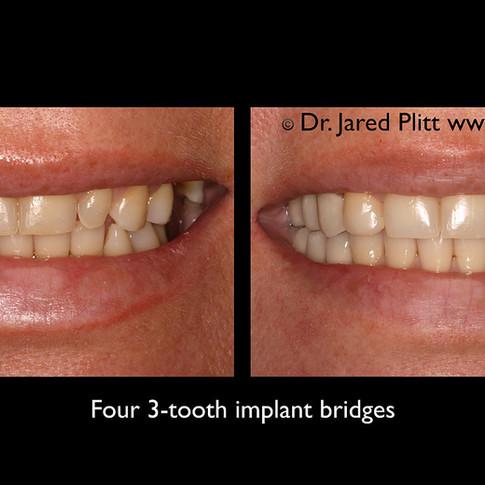 Four 3-Tooth Implant Bridges: Miami Beach Cosmetic Dentist Jared Plitt