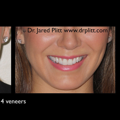 Four Veneers: Miami Beach Cosmetic Dentist Jared Plitt