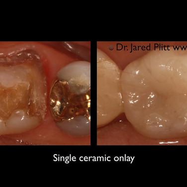 Single Ceramic Only: Miami Beach Cosmetic Dentist Jared Plitt