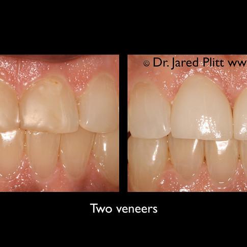 Two Veneers: Miami Beach Cosmetic Dentist Jared Plitt
