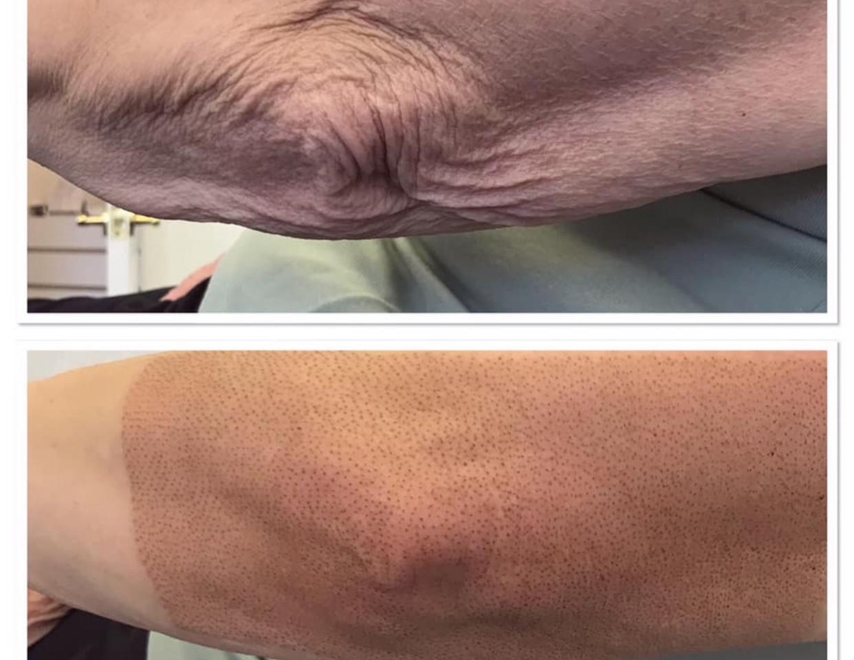 Plasma Fibroblast Arm Lift