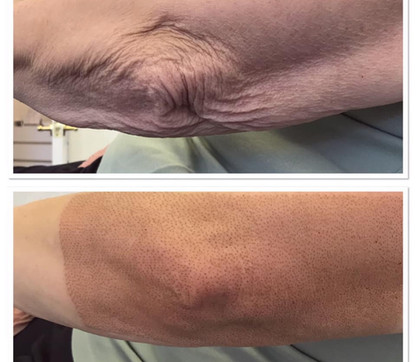 Arm Skin Tightening