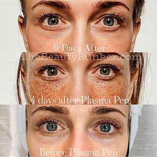 plasma-fibroblast-skin-tightening-seattl