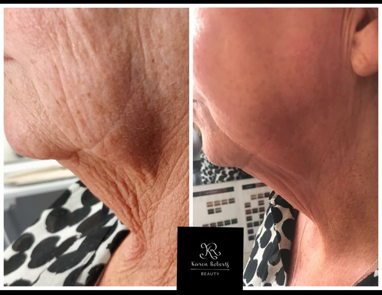 Plasma Pen Neck Lift