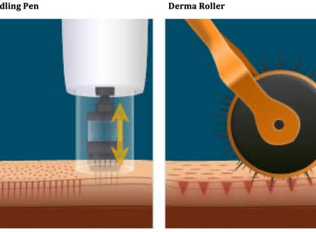 Microneedling VS Laser Resurfacing
