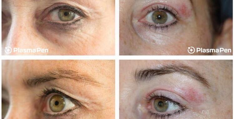 Plasma-Pen-Treatment-Seattle-Eyelids-Ble