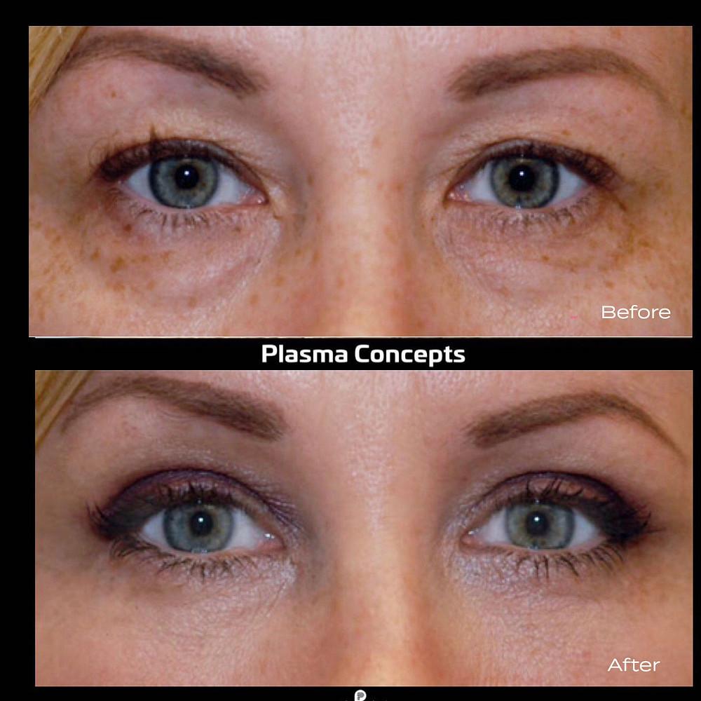 Plasma Pen Fibroblast Brow Eye Lift
