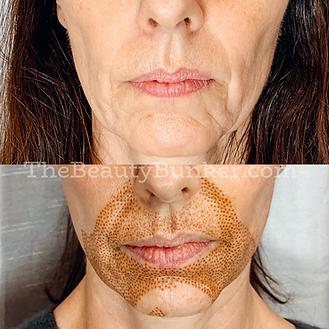 plasma-fibroblast-skin-tightening.png