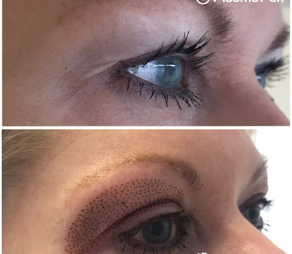 Plasma-Pen-Treatment-Eyelids-Blepharopla