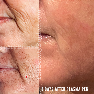 before and after plasma pen-seattle.png