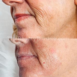 skin tightening jowls.jpg