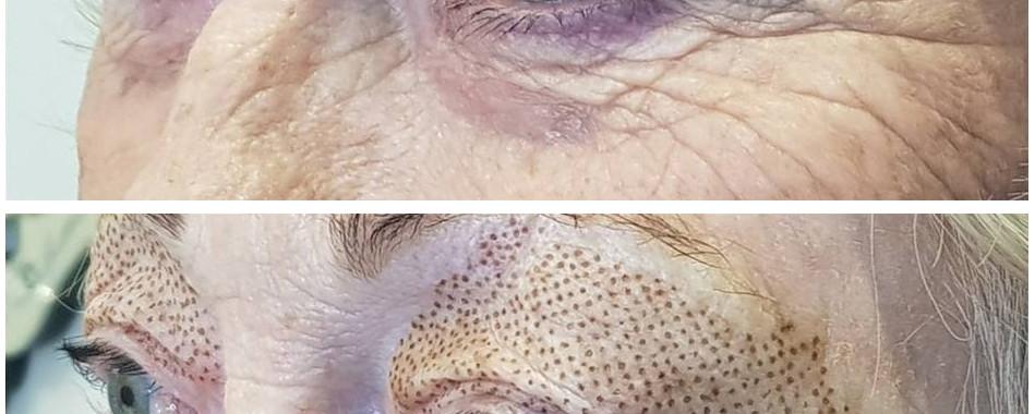 Plasma-Pen-Treatment-Lower-Eyelids-Bleph