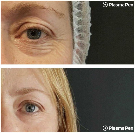 Plasma-Pen-Treatment-Seattle-Eyelids-Ble