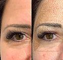 Upper Eyelift Blepharoplasty.jpg