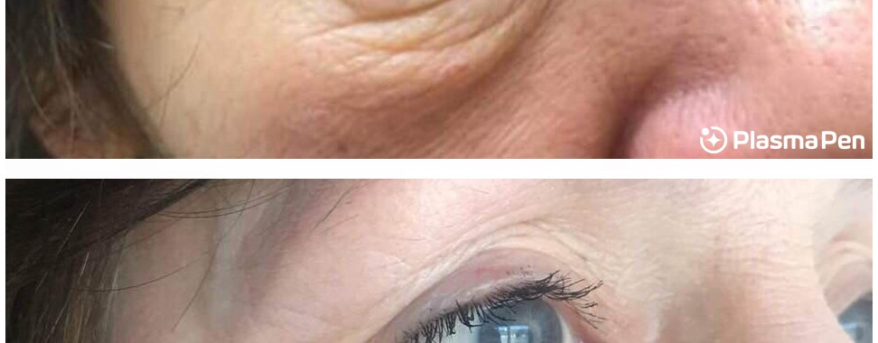 Plasma-Pen-Treatment-Before-And-After-Lo