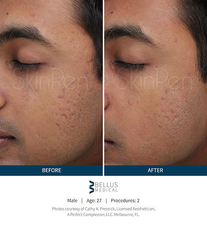 Before and After Image (1).jpg