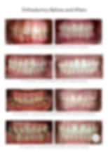 Bays_Dental_Before_and_After-_Ortho_Case