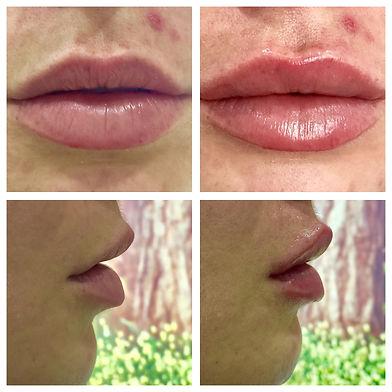 Bays_Dental_lip_fillers.jpg