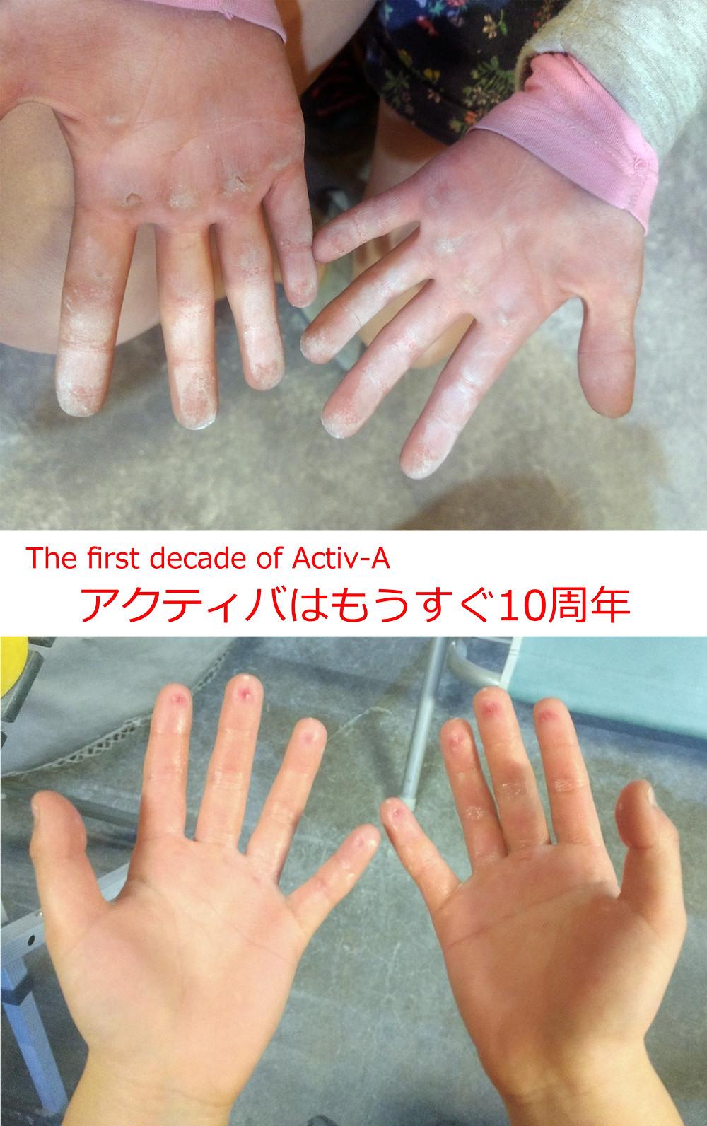 これが本当のクライマーの手(8歳と9歳)