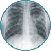 Human chest x-ray
