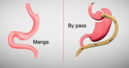 Bypass gástrico vs Manga gástrica