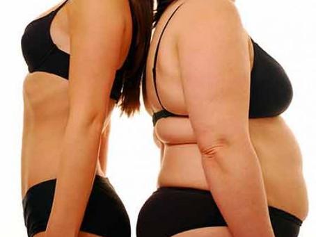 Cirugía bariátrica para bajar de peso