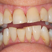 Oakdene Dental Practice teeth whitening