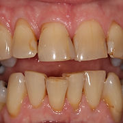 Oakdene Dental Practice teeth whitening