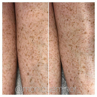 Getting you summer ready one strip at a time. Before & after leg wax.jpg