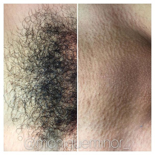 Before and after Brazilian wax. What a difference.jpg