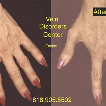 Vein Disorder Resolved by Dr. Goren 3