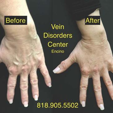 Vein Disorder Resolved by Dr. Goren 6