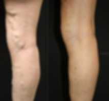 Varicose-veins-female-1-.png