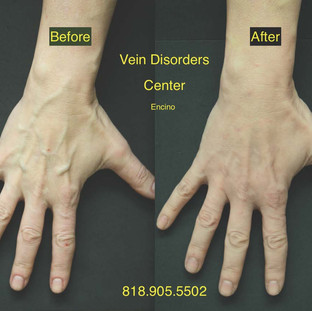 Vein Disorder Resolved by Dr. Goren 8