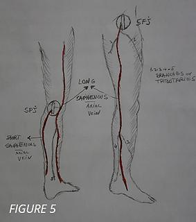 saphenous veins