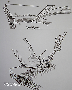 vein removal hook technique