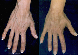 Before and After Rejuvahands.png