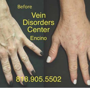 Vein Disorder Resolved by Dr. Goren 12