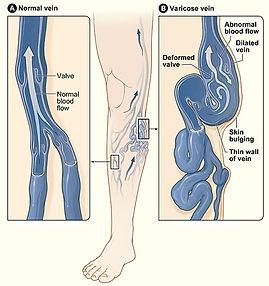 diseased vein