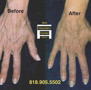Vein Disorder Resolved by Dr. Goren 7