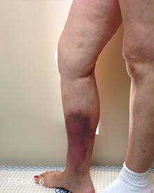chronic veinous insufficiency
