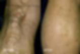 variciose_veins81-150x100.png